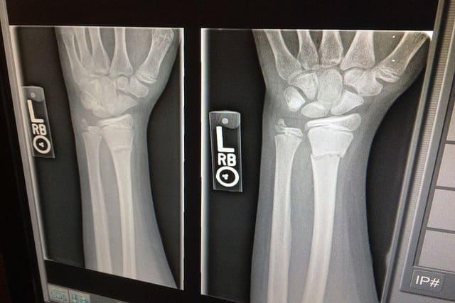 Primeros auxilios para preparadores - Parte 2: esguinces y huesos rotos